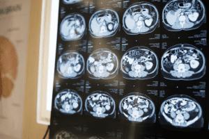 Brain Scans - Memory